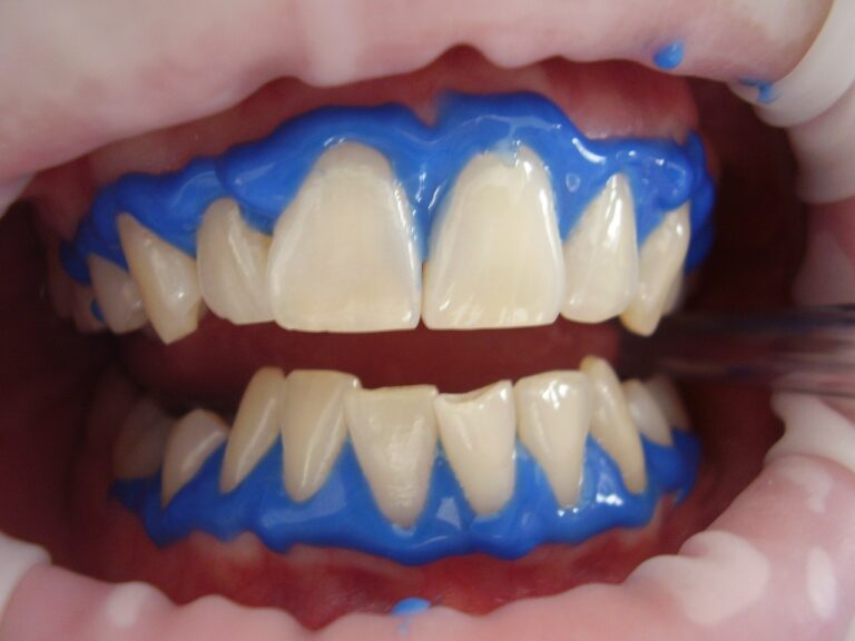 Want To Get Rid Of Discoloration Of Teeth? – Get Teeth Bleaching Treatment From An Orthodontist