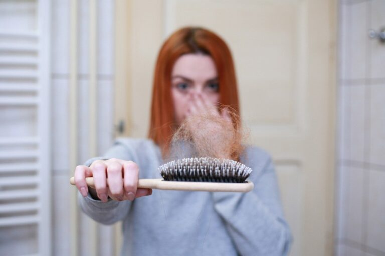 What common questions people ask about hair loss?